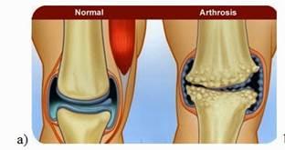 diagnózis artritisz artrózis a térd