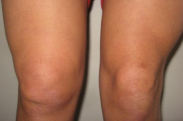 térdízület ragasztásainak ligamentózisa az ujjak ízületi gyulladása mi ez