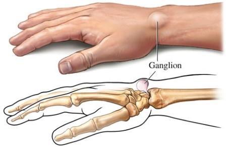 ízületi arthrosis a kéz és annak kezelése
