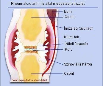 gyulladásos ízületi fájdalom)