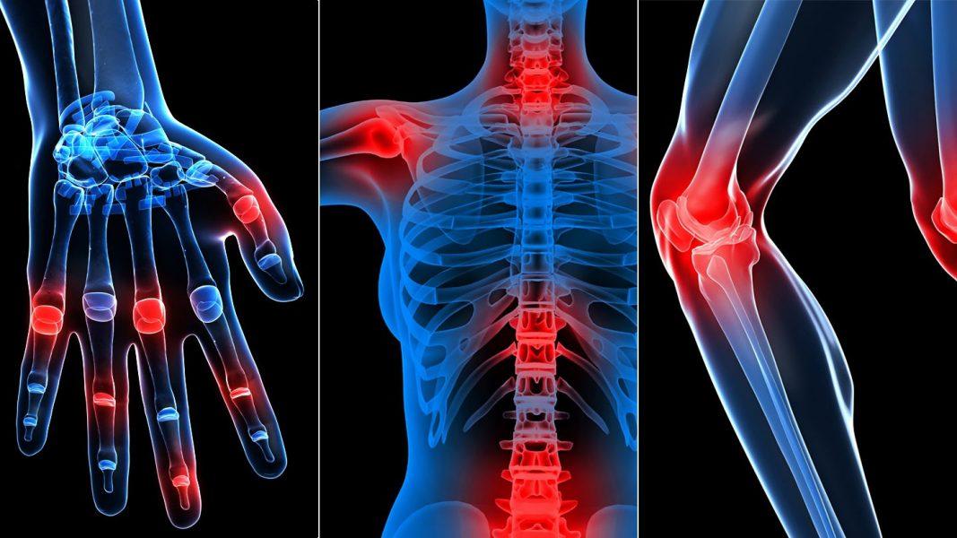 ízületek és izmok, amelyek fájnak artrózis kezelés és a tünetek okai