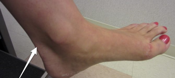 hogyan lehet megszabadulni a lábízület fájdalmától)