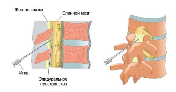 szteroid kenőcsök az osteochondrozishoz)
