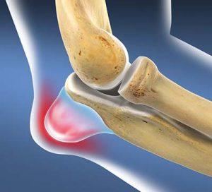 éles fájdalom a karok és a lábak ízületeiben