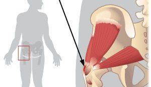 csípőízületi sérülés)