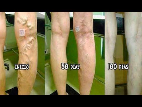 Ketodex 25 mg granulátum belsőleges oldathoz 20x