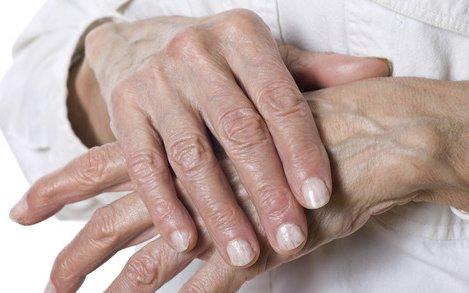 hatékony kenőcs a kéz ízületi gyulladásáért