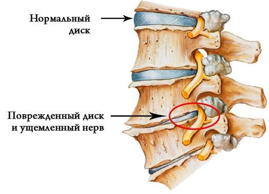 a fájdalom kiküszöbölése a csípőízületben ízületi ízületi gyulladás kezelése múmiával