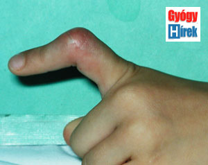 az ujj ízülete vágás után fáj)