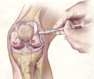 térdfájdalom homeopátia)