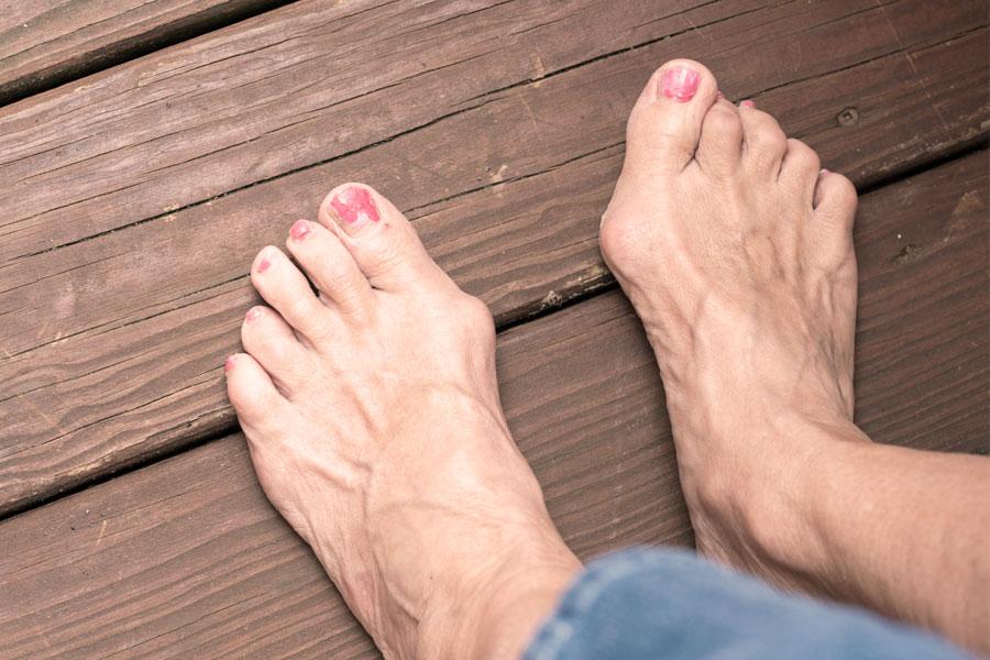 hogyan kell kezelni a nagy lábujjak ízületeit a coxarthrosis tünetei a csípőízületek artrózisának kezelése