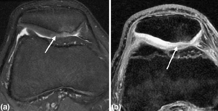 artrózisos kezelés polkortolonnal