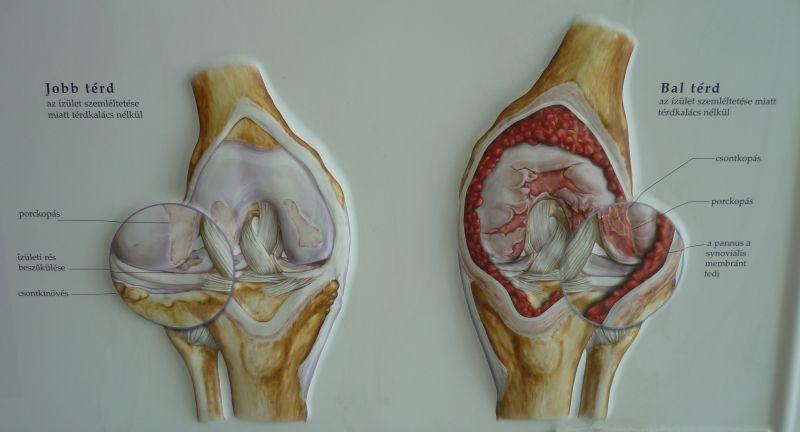 térdízületi kezelés ára mi a váll periarthrosis kezelés