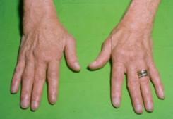 ízületi fájdalom a kéz duzzanata krémes kenőcsök nyaki csontritkulás kezelésére