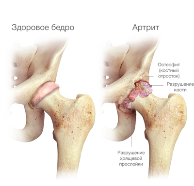 egyidejű fájdalom a csípő és a vállízületekben)