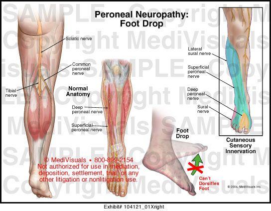 láb metatarsális gyulladása