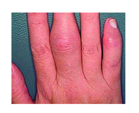 izületi gyulladás az ujjban