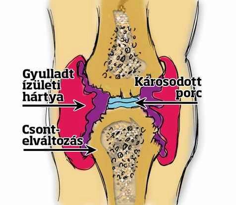 a térd ismétlődő ízületi gyulladása