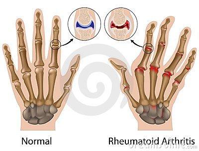 kúpok a kezén reumatoid artritisz