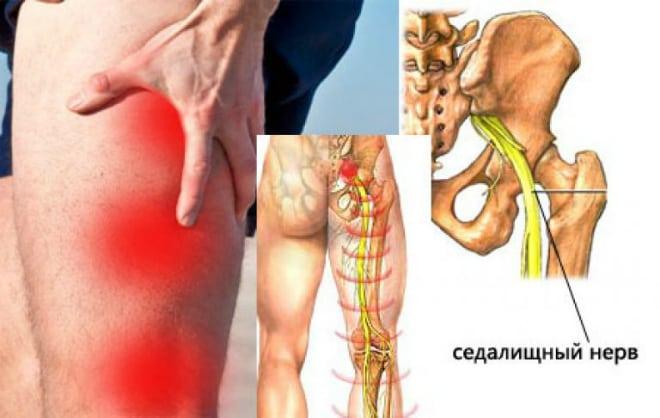 izomfájdalom a térdízület kezelésében ízületi és fájdalomváltozások okai