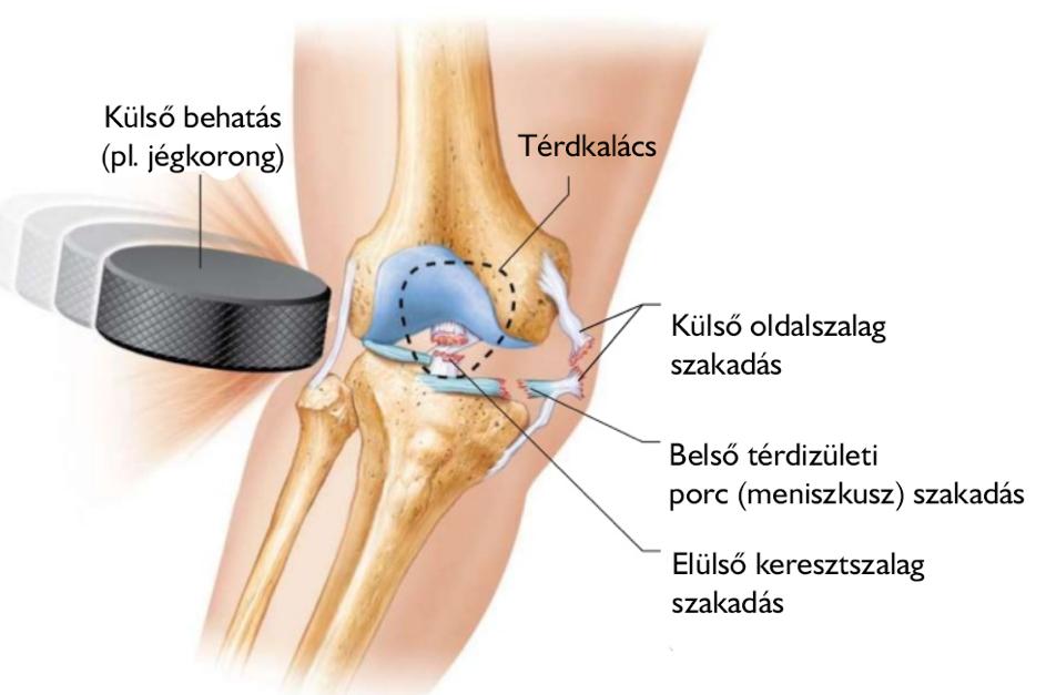 Intervertebrális deformáció artrózis kezelése Ízületi porckopás (Arthrosis, artrózis)