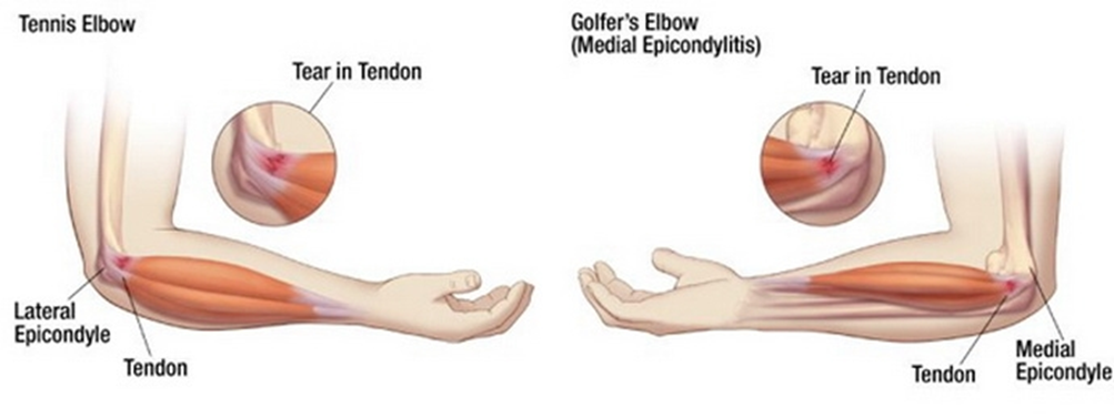 a térd artrózisának tornakezelése