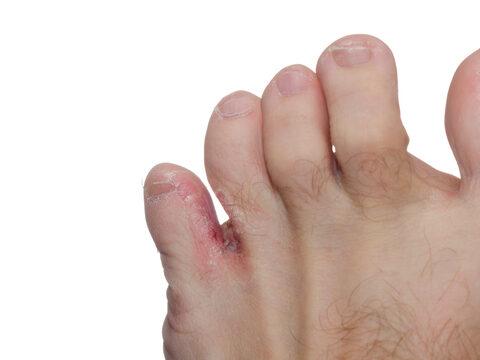kenőcs a lábujjak artrózisának kezelésére)
