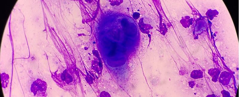 térdgyulladást okozó fertőzések)