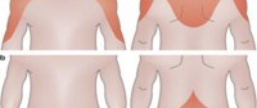 ízületi fájdalom és stroke)