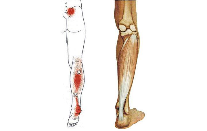 fájdalom a csípőízületekben hosszú séta után