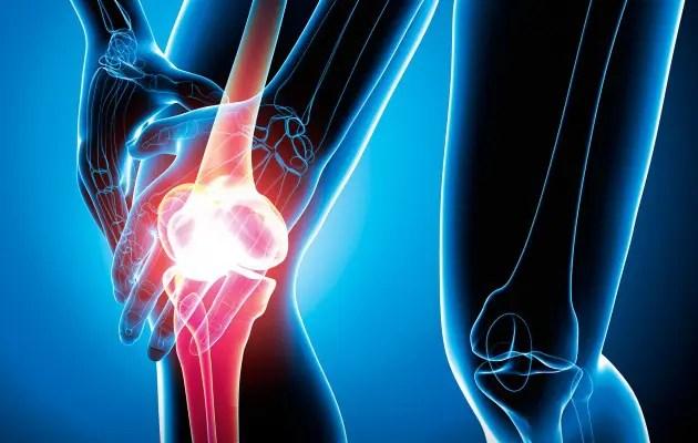 Betegségek » térd » izületi sérülések – Debreceni Ortopédia – ortopédiai szakrendelés Debrecenben