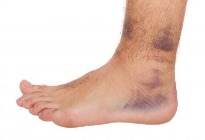 bokaízület és láb betegségei