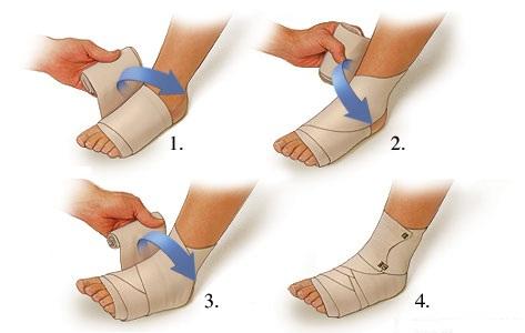 duzzanat a boka sérülése után a kezek ízületei fájnak, mit inni