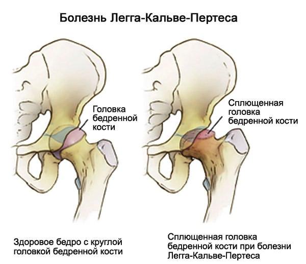 a csípőízület gennyes artrózisa
