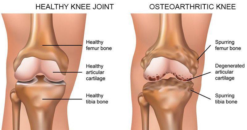 térdízületi ligamentum törése és kezelése)