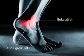 fájdalom a boka ízületében és a láb ívében
