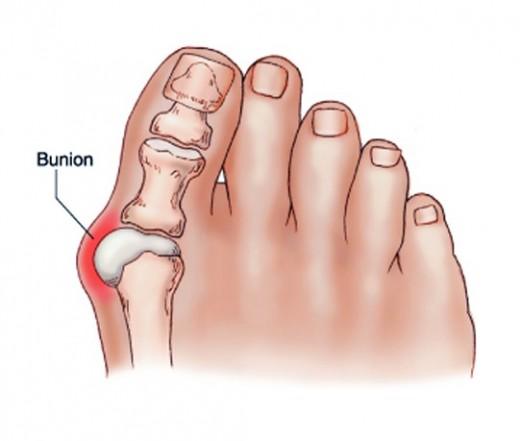 hogyan fáj a nagy lábujj ízülete)