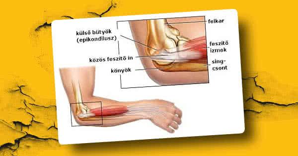 könyök epicondylitis betegség)