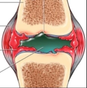 mentő a térd artrózisában
