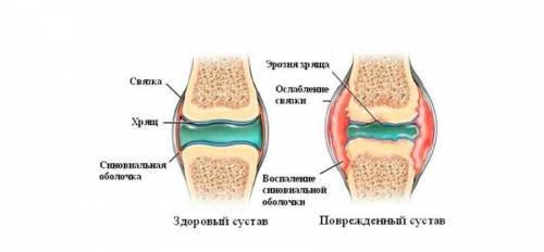 a vállízület szinovitisz)