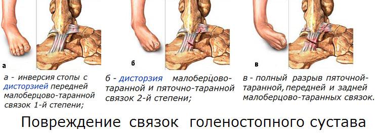 Áttekintés a boka kötés szakadásáról: a lényeg, a patológia típusai, a kezelés - Bőrgyulladás July