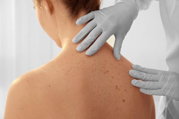 ízületi fájdalom melanoma)