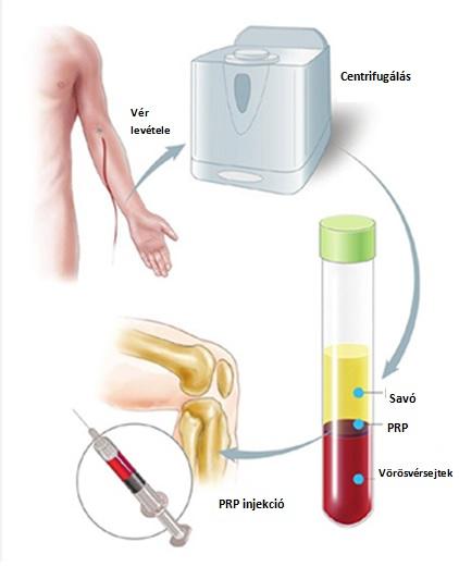 MD kollagén terápia - MD Orvosi Kollagén Terápia