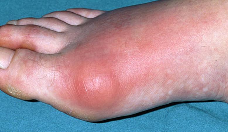 ízületi gyulladás a lábban, hogyan kell kezelni)