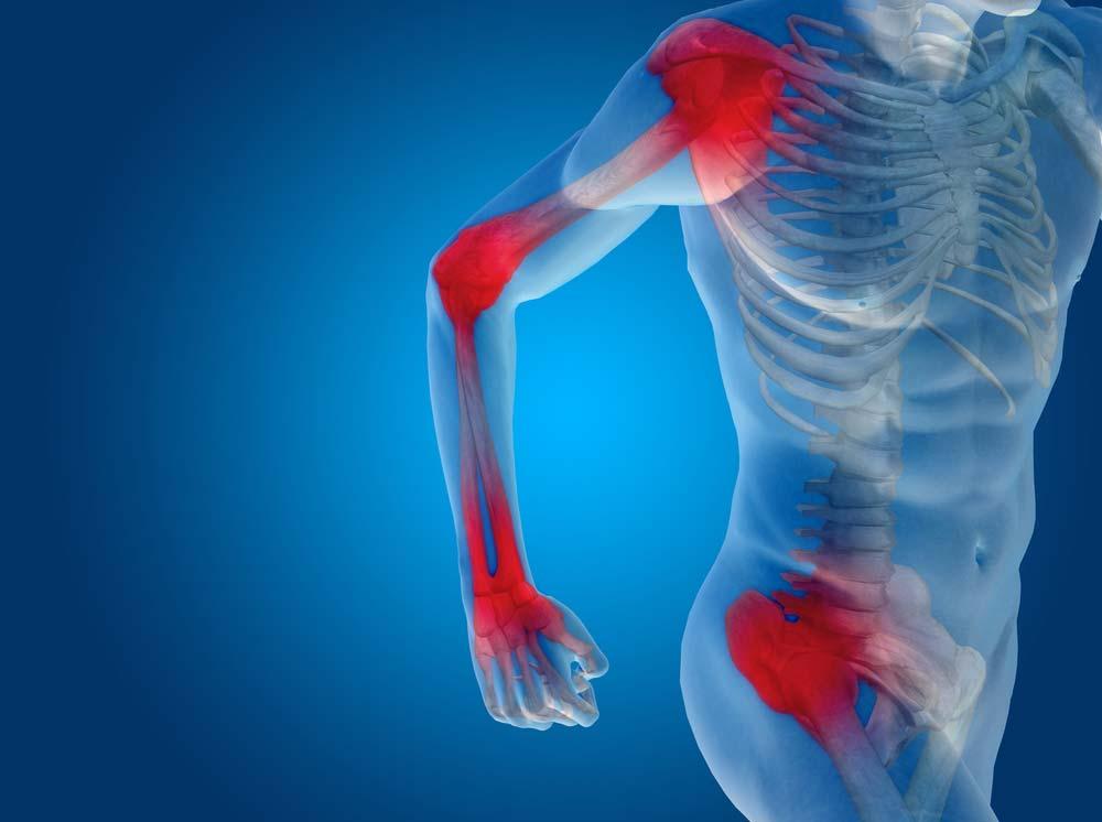 ízületi fájdalom ízületi fájdalommal fájdalom a vállízületekben és a lapocka
