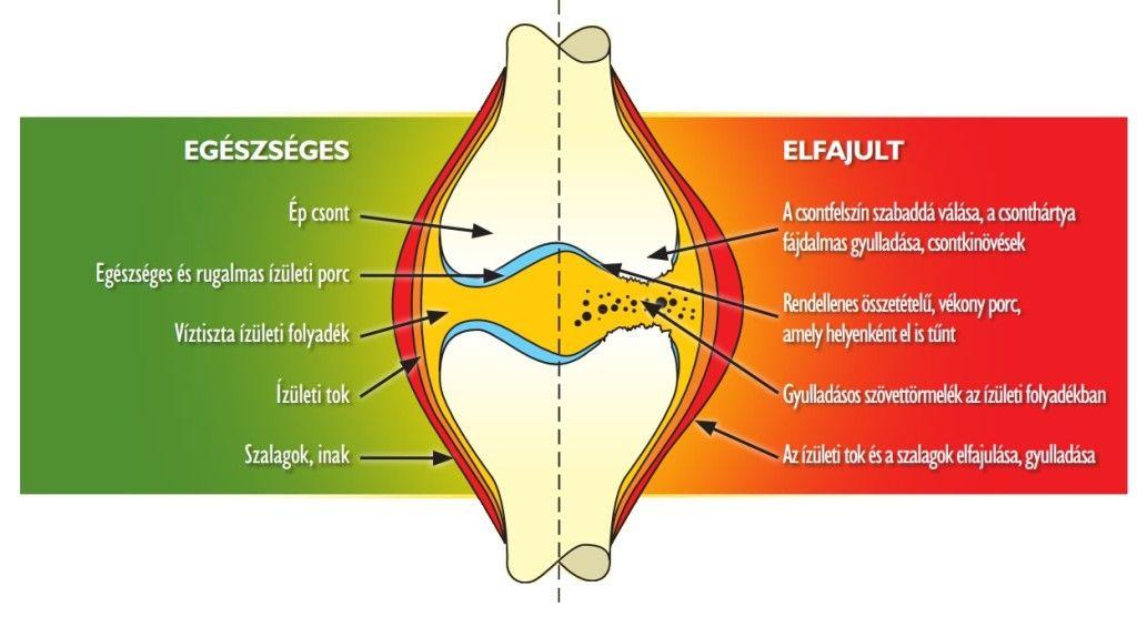 mi az ízületi fájdalom oka gyulladásos és egyéb ízületi betegségek kollektív neve