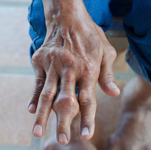 fájdalom a karokban és a lábakban az ízületekben)