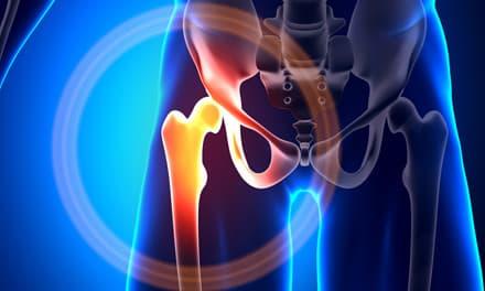 egyik csípőízület fájdalma