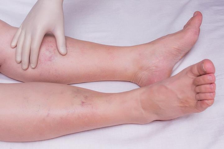 zsibbadás a láb fájó ízülete)
