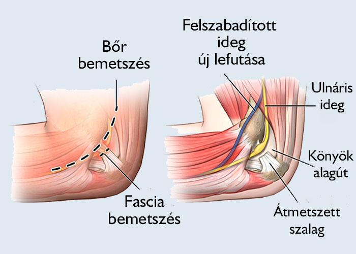 Könyök műtétek   Kastélypark Klinika